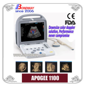 Portable Smart 4D Color Doppler Ultrasound Scanner with CE FDA Mark pictures & photos
