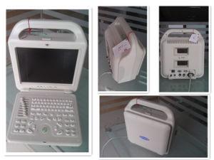 Laptop Ultrasound Scanner (atnl/51353A LCD)