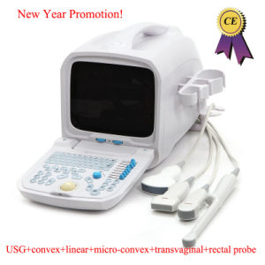 10.4 Inch Full Digital Portable Ultrasound Scanner (PC) -Rus-9000A-Fanny pictures & photos