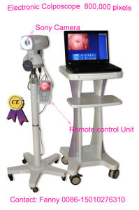Digital Electronic Colposcope (RCS-500) -Fanny pictures & photos