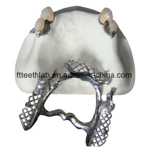 Ceka-Preciline Dental Attachments pictures & photos