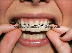 Dental Cap on Smile with Full Arch Uniform Teeth pictures & photos