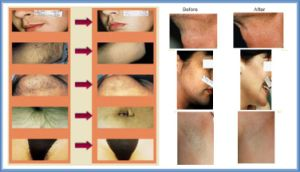 808nm Diode Laser Permanent Hair Removal System pictures & photos