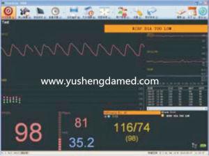 Ysdp2 NIBP/SpO2/Temp Vital Signs Monitor pictures & photos