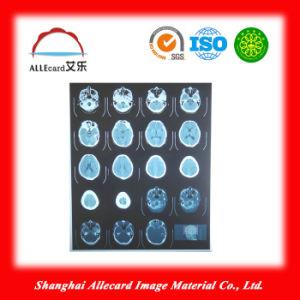 Medical X-ray Laser Film, Laser Pet Film, X-ray Blue Film, Water Proof Laser Medical X-ray Film pictures & photos