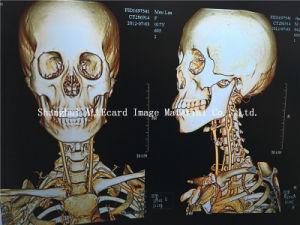 Printing X-ray Film Pet Laser Film pictures & photos