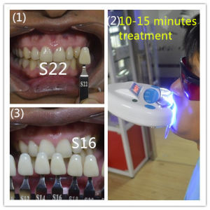 Clinic Use Vertical Teeth Whiten System pictures & photos