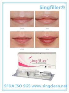 Wrinkle Removal Injection Sodium Hyaluronate for Lip Beauty pictures & photos