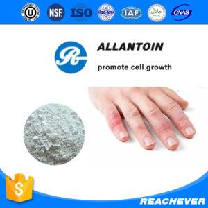 (Allantoin) --Allantoin CAS No.: 97-59-6 Cosmetic Allantoin pictures & photos