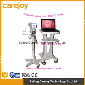 Factory Price Digital Electronic Colposcope (RCS-500II) -Fanny pictures & photos