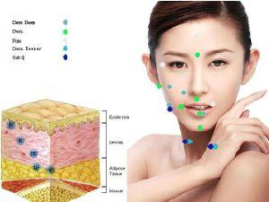Hot Sale Hyaluronic Acid Dermal Filler for Wrinke Injection pictures & photos
