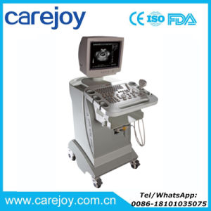Carejoy Multi-Frequency Trolley Ultrasound Scanner Mobile Ultrasound Machine Rus-9000d-Maggie pictures & photos