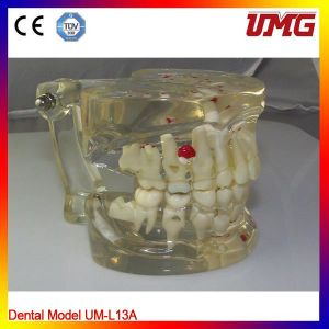 Dental Orthodontic Model for Teaching pictures & photos