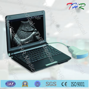 Laptop Full Digital Ultrasound Scanner (THR-LT003) pictures & photos
