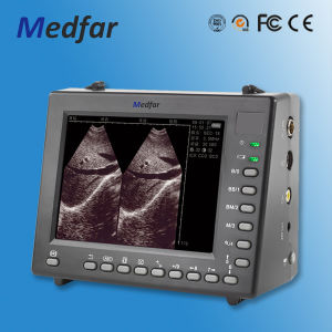 Palmsize Black&White Ultrasound MFC1000 pictures & photos