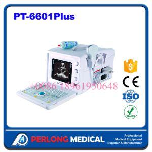Hot Sale Portable Medical Diagnostic Equipment & Portable Medical Ultrasound pictures & photos