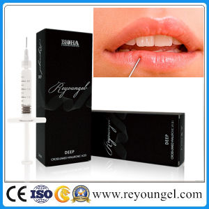 Reyoungel Hyaluronate Acid Lip Fullness Dermal Filler pictures & photos