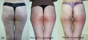 Fast Body Slimming Machine Kuma Shape 3 Cellulite Removal! Instant Remove Facial pictures & photos