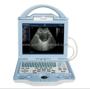 Full Digital Diagnostic Handheld Ultrasound System Ysd1208 CE Approved pictures & photos