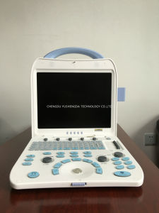 Laptop Color Doppler Ultrasound Scanner Ysd350 Ultrasonic System pictures & photos