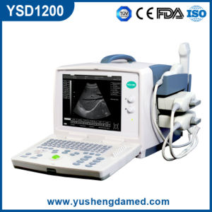 Full Digital Portable B Mode Ultrasound Scanner (YSD1200) pictures & photos