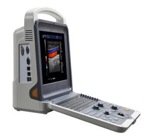 China Portable Full Digital Color Doppler Scanner Ultrasound (HUC-300) pictures & photos
