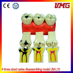 Dental Care Model New Style Medical Dental Care Model pictures & photos