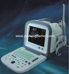 Ce Approved Digital Handheld Portable Laptop Ultrasound Ysd1308A pictures & photos