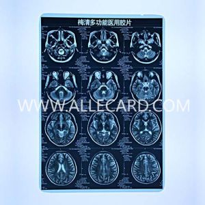 Medical Dry X Ray Film pictures & photos
