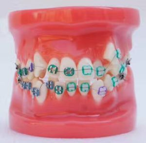 Dental Study Model with Brackets pictures & photos