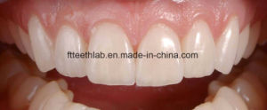 Lumineers Ultra Thin Porcelain Veneers From China Dental Lab pictures & photos