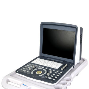 Portable Color Doppler Ultrasound MFC6100 pictures & photos
