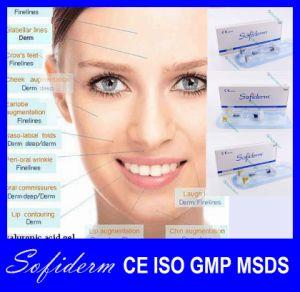 Sofiderm Face Use Hyaluronic Acid Gel Injection, Hyaluronic Acid Dermal Filler pictures & photos