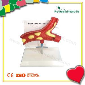 DeskType Disease Artery Anatomical Model For Patient pictures & photos