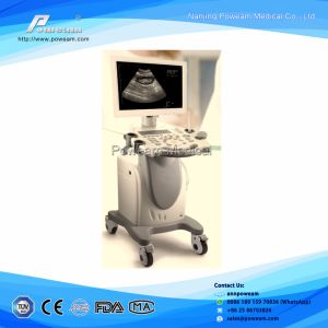 Medical/ Hospital Equipmentportable B/W Ultrasound Scanner for Human pictures & photos