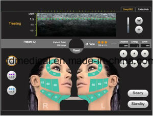High Intensity Focused Ultrasound Skin Rejuvenation Machine Hifu pictures & photos