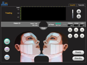 Portable High Intensity Focused Ultrasound Machine Face Lift pictures & photos