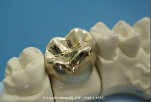 Customized Titanium Metal Crown with Suitable for Allergy Person pictures & photos