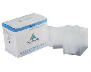 Lp PLA2 Medical Test Blood Test Heart Tests Lp PLA2 Treatment pictures & photos