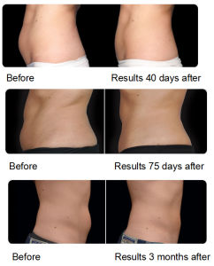 Cryolipolysis Body Shaping Beauty Machine Vacuum Coolsculpting Cooling Cryolipolysis pictures & photos