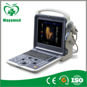 My-A035A Medical Equipment 4D Portable Color Doppler Ultrasound Scanner pictures & photos