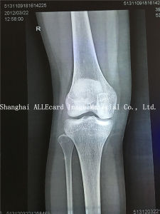 Inkjet Printing Film, Medical X-ray Blue Film pictures & photos