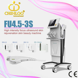 2015 Newest High Intensity Focused Ultrasound Hifu Equipment (FU4.5-3S) pictures & photos
