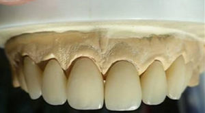 Temporary Crown From Chinese Dental Lab pictures & photos