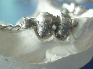 Dental Casting Partial Denture Supplies with Precious Attachments pictures & photos