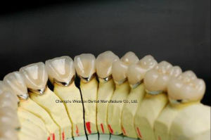 Pfm Crown From Chinese Dental Lab pictures & photos