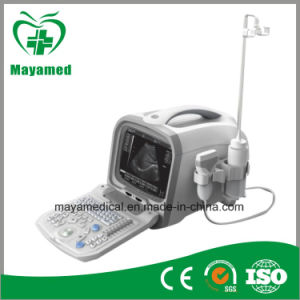 My-A002 All-Digital Portable Ultrasound Diagnosing Equipment pictures & photos