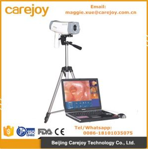Ce Approved Electronic Colposcope Rcs-400 Color Digital with CCD Sony Camera for Vaginalitis, Cervical Ectropio, Cervicitis-Candice pictures & photos