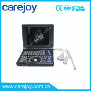 10.4 Inch Full Digital Notebook Ultrasound Scanner with Convex Probe (RUS-9000E2) -Fanny pictures & photos