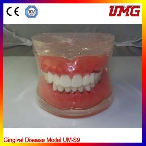 Dental Teaching Model for Gingival Disease Model pictures & photos